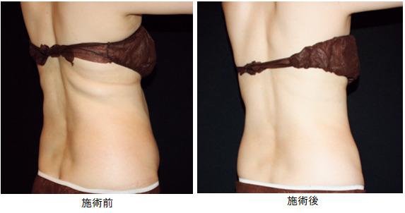クルスカは、気になる部位の脂肪