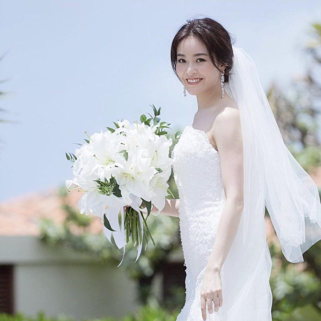 純白のドレスに黄ばんだ歯…なん