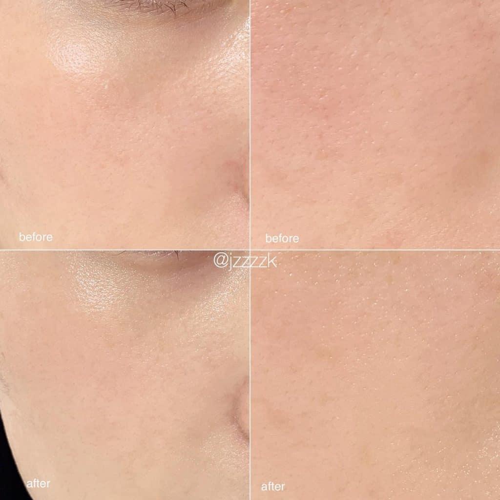「毛穴悩みの原因は肌の乾燥から
