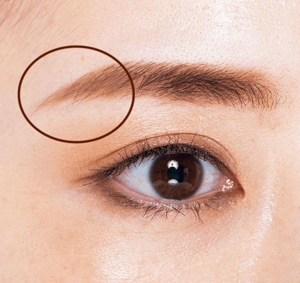 皮脂の分泌が多い眉尻から消え